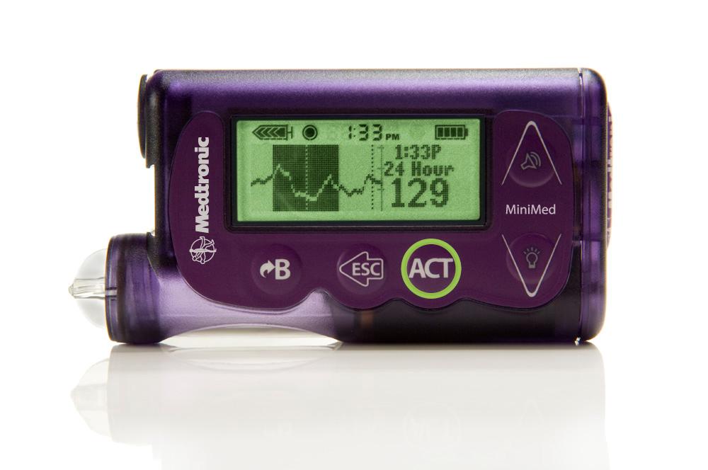 دستگاه تنظیم قند خون